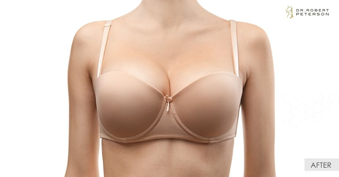 After-Breast Lift With Augmentation