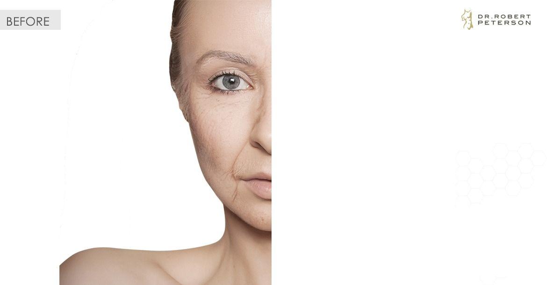 Before-Eyelid Surgery