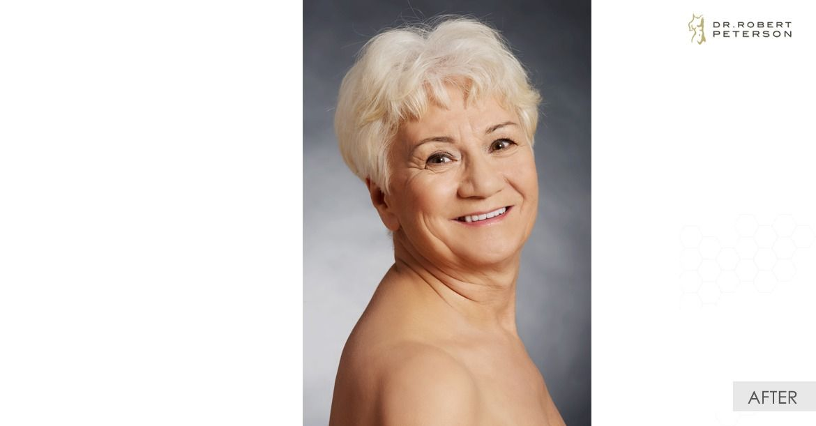 After-Isolated Neck Lift