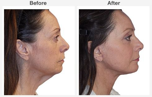 Isolated Neck Lift 1 1