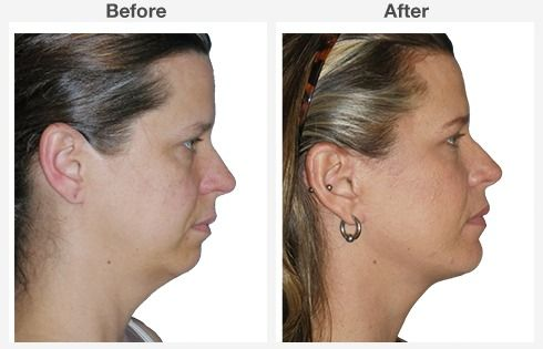 Isolated Neck Lift 2 2