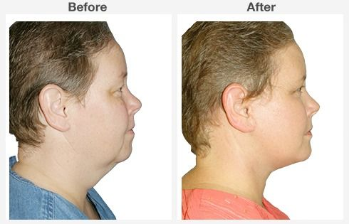 Isolated Neck Lift 3 3