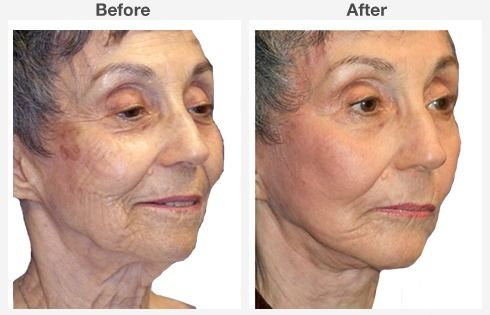 Isolated Neck Lift 4 4