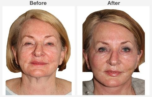 Isolated Neck Lift 5 5