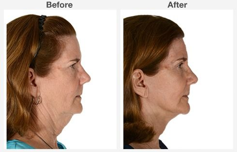 Isolated Neck Lift 6 6