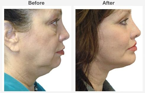 Neck Liposuction 1 1