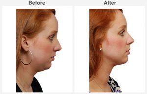 Neck Liposuction 2 2