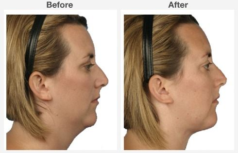Neck Liposuction 3 3