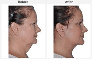 Neck Liposuction 4 4