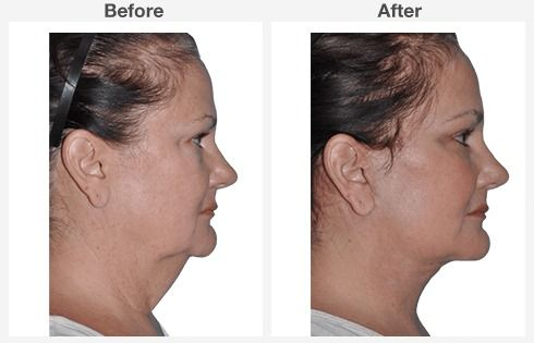 Neck Liposuction Before & After