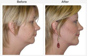 Neck Liposuction 5 5