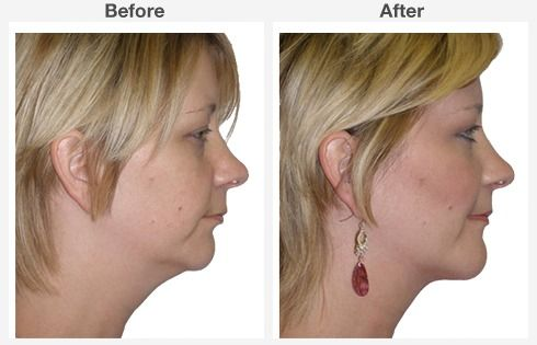 Neck Liposuction 5 5