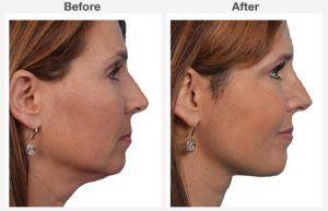 Neck Liposuction 6 6