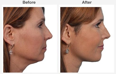Neck Liposuction 6 6