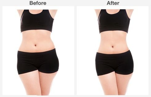 before & after abdominoplasty 2 2