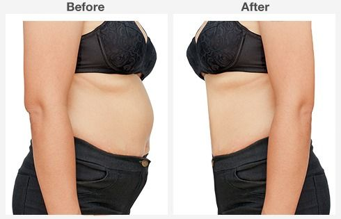 abdominoplasty 4 4