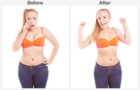 before and after abdominoplasty 5 5