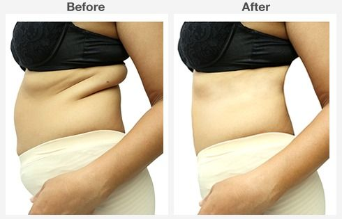 before and after abdominoplasty 9 9