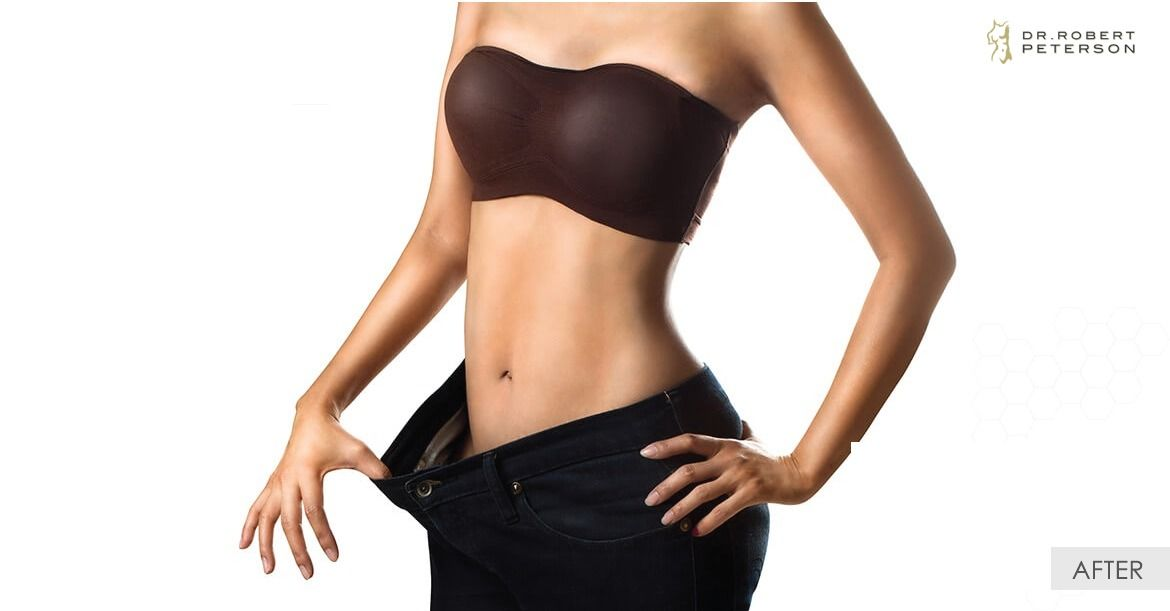 After-Tummy Tuck - Abdominoplasty