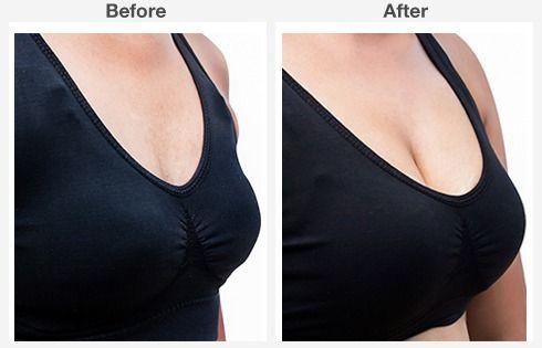 breast augmentation 2 2