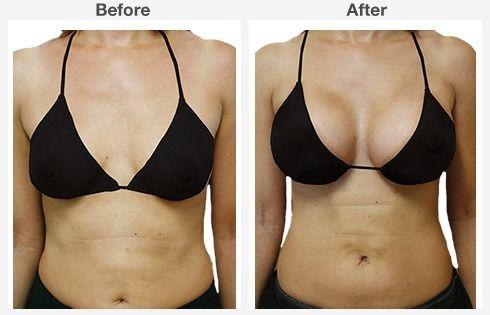 breast augmentation 3 3