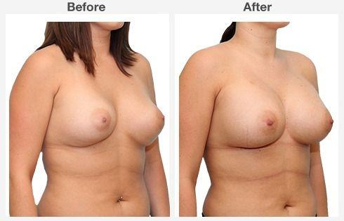 breast augmentation 4 4