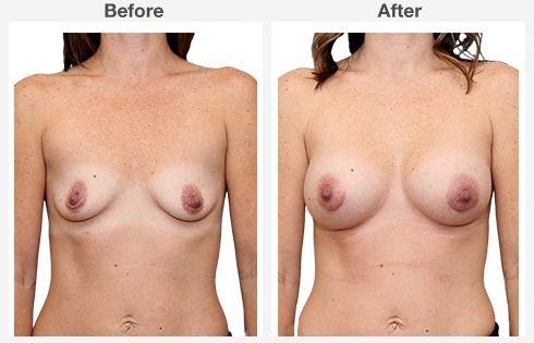breast augmentation 5 5