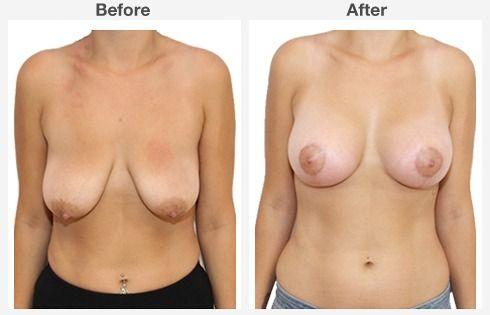 breast augmentation 6 6