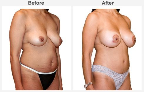 breast augmentation 7 7