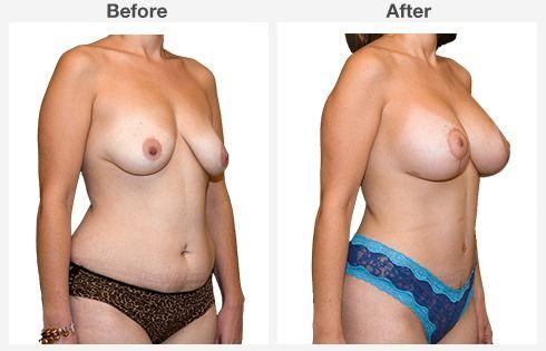 breast augmentation 8 8