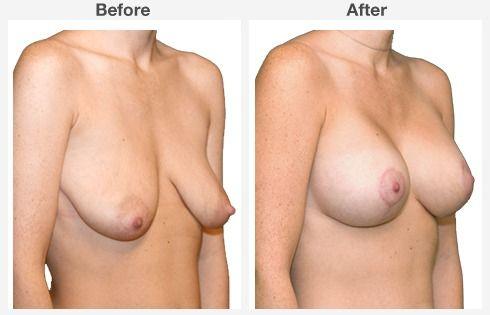 breast augmentation 9 9