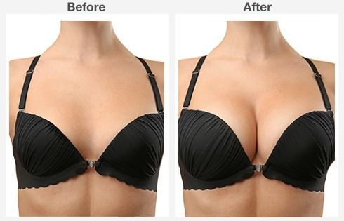 breast lift with augmentation 1 1