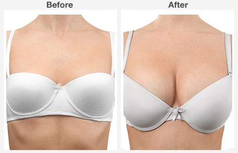 breast lift with augmentation 2 2