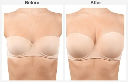breast lift with augmentation 3 3