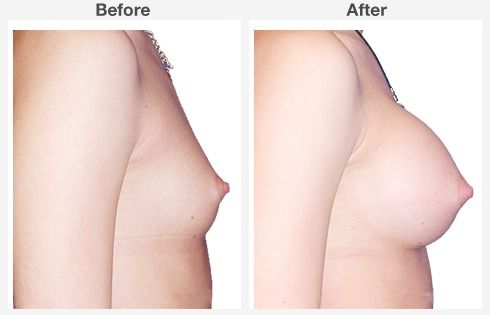 breast lift with augmentation 4 4
