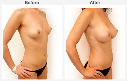 breast lift with augmentation 5 5