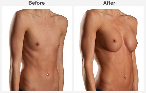 breast lift with augmentation 6 6