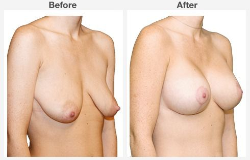 breast lift with augmentation 7 7