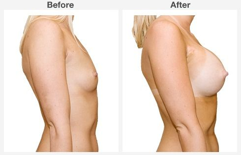 breast lift with augmentation 8 8