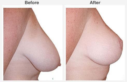 breast lift with augmentation 9 9