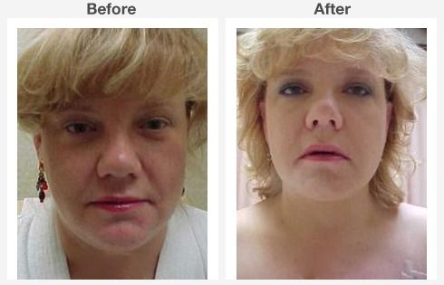 endoscopic brow lift face lift neck lift 1 1