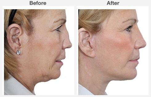 endoscopic brow lift face lift neck lift 4 4