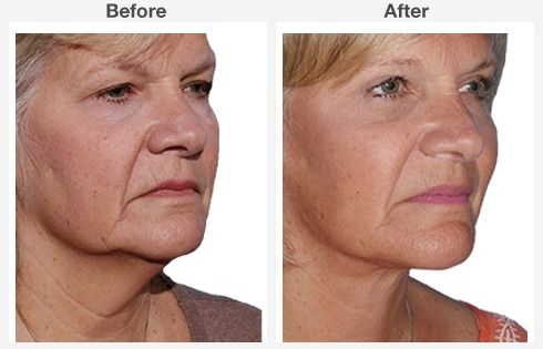 endoscopic brow lift face lift neck lift 5 5