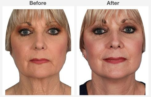 endoscopic brow lift face lift neck lift 6 6