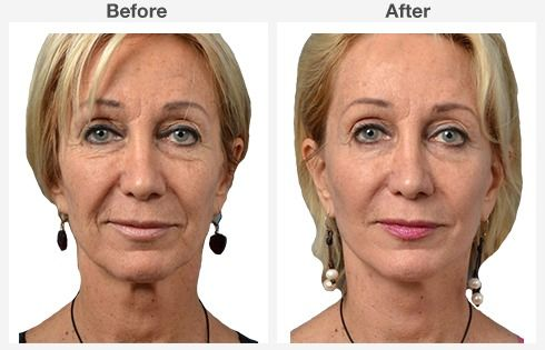 endoscopic brow lift face lift neck lift 7 7