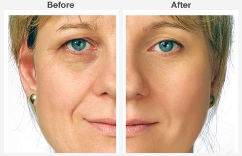 eyelid surgery 1 1