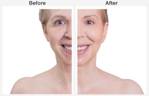 eyelid surgery 2 2