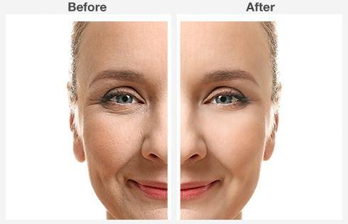 eyelid surgery 4 4