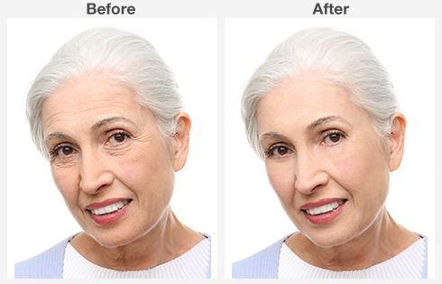 eyelid surgery 5 5