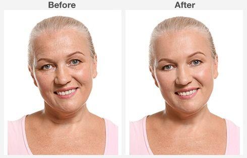 eyelid surgery 6 6